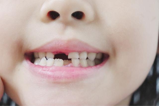 夢占い歯が出てくる歯が生え変わる夢